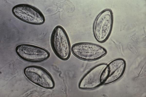 Жизненние цикли паразитов: как развиваются и где живут?