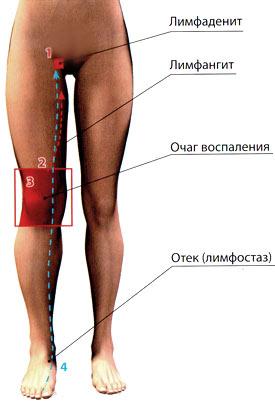 слоновость ног симптомы фото