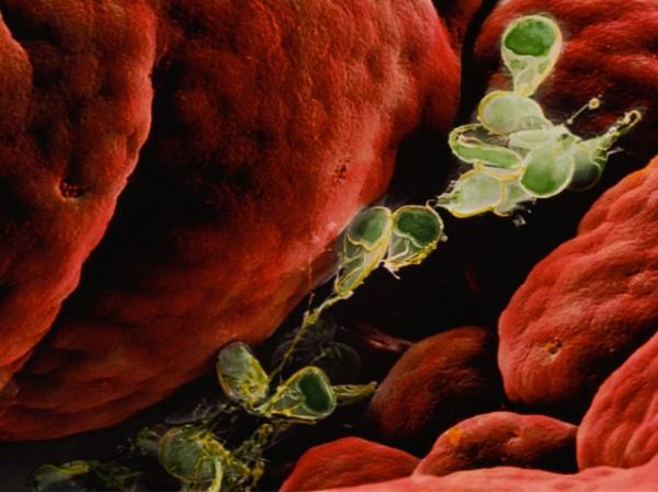 Лямблиоз в крови