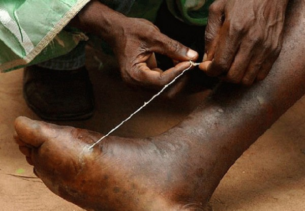 Подкожние паразити: какие существуют и чем опасни
