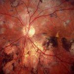 Токсоплазмоз в тканях