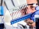 Анализ крови на глистов
