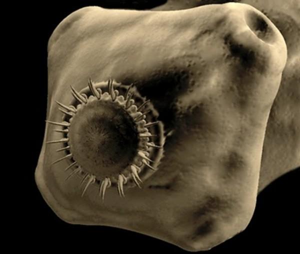Цестодозы