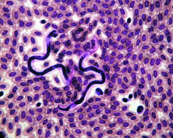 Дирофиляроз в крови