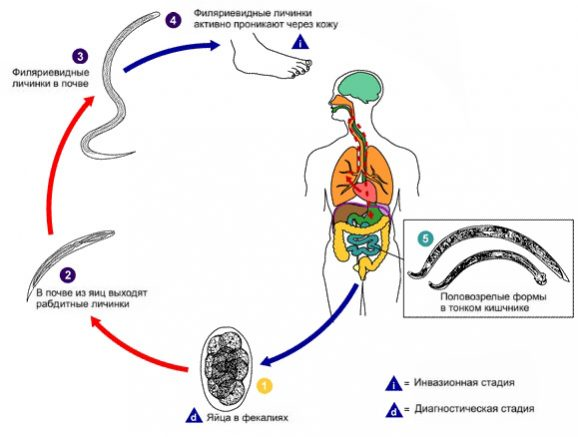 анкилостомидоз